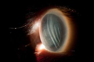 Angela Chappell; Wolverine Eye.